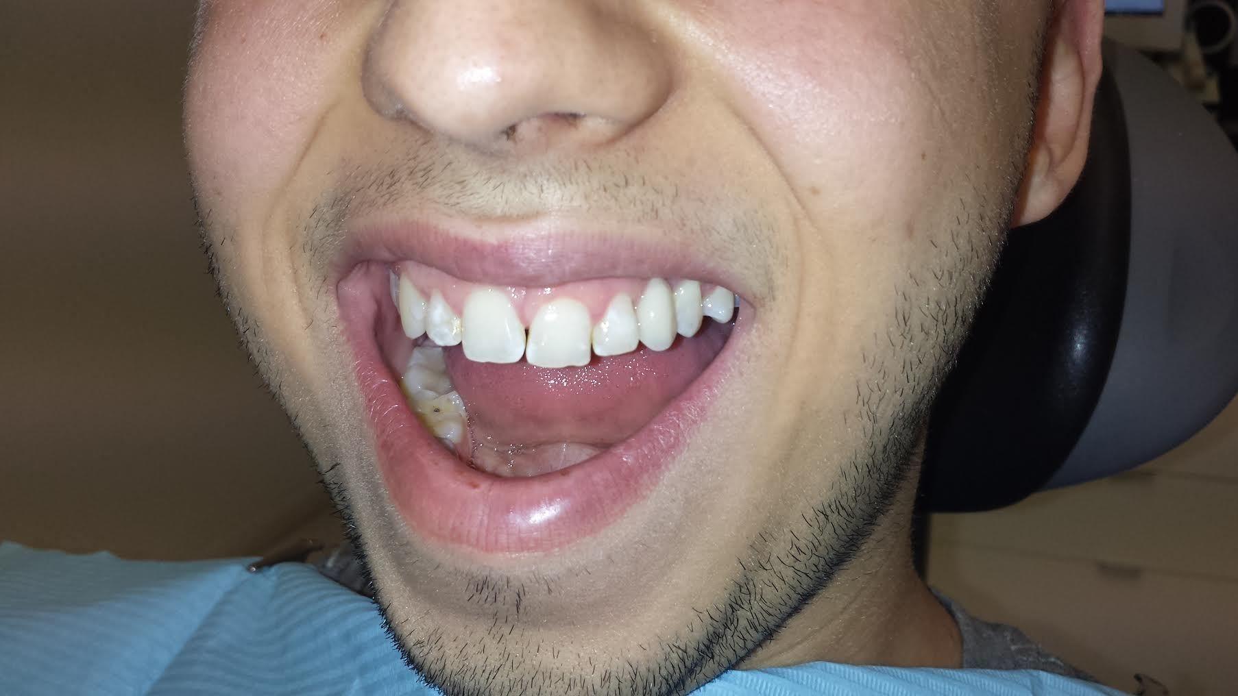 Implantologie dentaire : comment ça marche ?